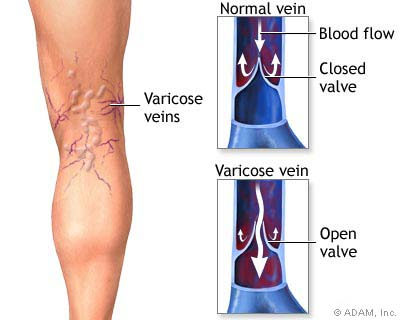 Vein Treatment Center In Westchester County Ny Vein